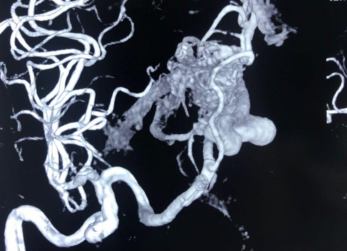 センター 心臓 西宮 血管 渡辺 脳